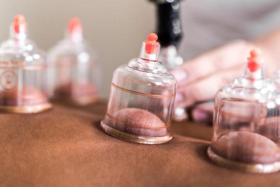 Schröpftherapie Schröpfen Heilpraktiker Medical Beauty Aesthetic Frankfurt 2