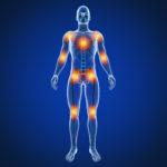 Rückenschmerzen, Knieschmerzen, Schulterschmerzen, Kopfschmerzen, Migräne 2 Liebscher & Bracht Heilpraktiker Frankfurt am Main
